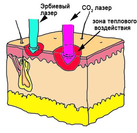Схема воздействие углекислотного и эрбиевого лазера на кожу