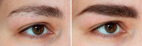 фото до и после процедур с маслом зародышей пшеницы