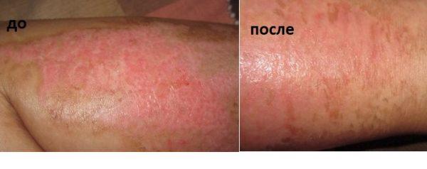 обожжённый участок кожи до и после применения амарантового масла