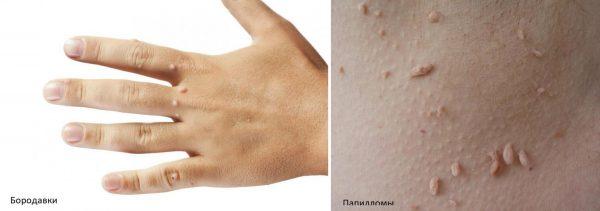 Дефекты на коже