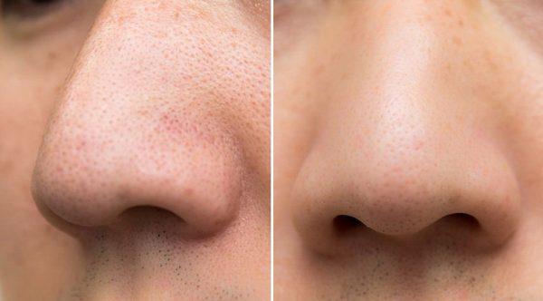 Нос до и после использования скраба
