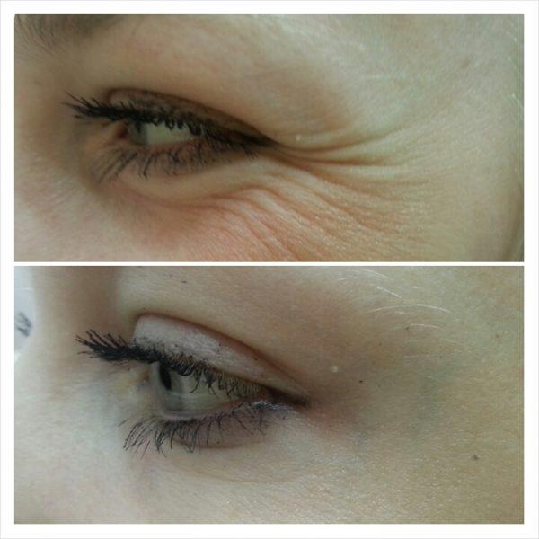 Морщины у глаз до и после применения масла