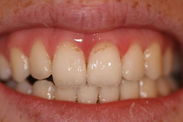 Налёт на зубах