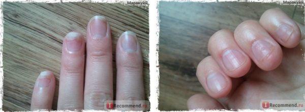 Ногти ДО и ПОСЛЕ лечения
