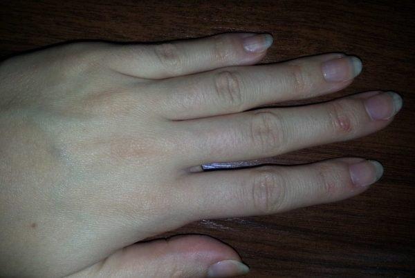 Ногти и руки девушки после применения кедрового масла