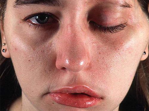 Последствия использования Ботокса на лице девушки