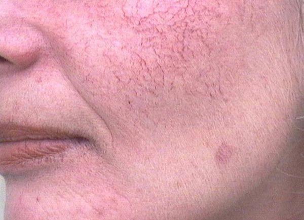 Сетка капилляров на лице