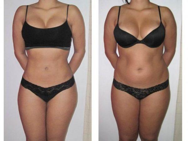 фото до и после курса щипкового массажа живота с льняным маслом