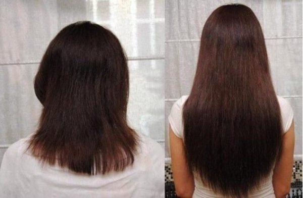 фото до и после курса процедур с кунжутным маслом и горчицей
