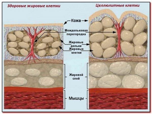 Отличие здоровых жировых клеток от целлюлитных