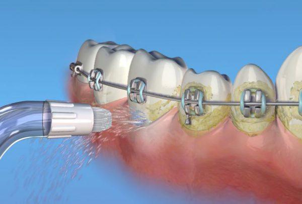 Чистка ирригатором зубов с брекетами
