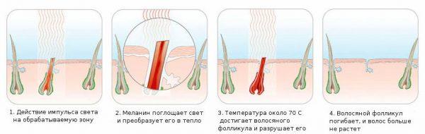 Действие импульсного света на кожу