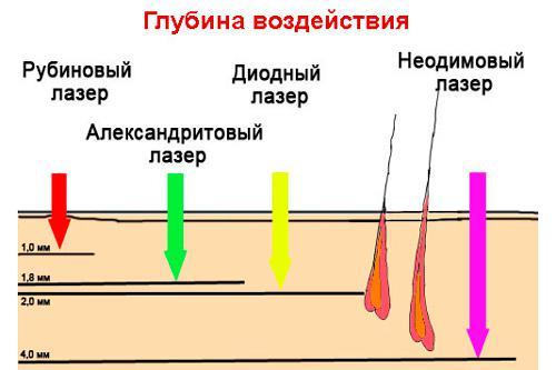 Длина волны у лазеров разного типа