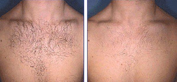 Волосы на груди до эпиляции и после