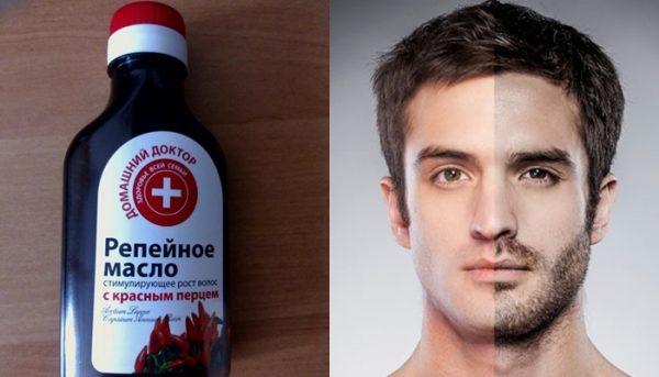 Коллаж: репейное масло и бородач