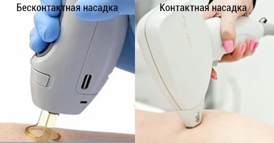 Контактная и бесконтактная насадка лазера