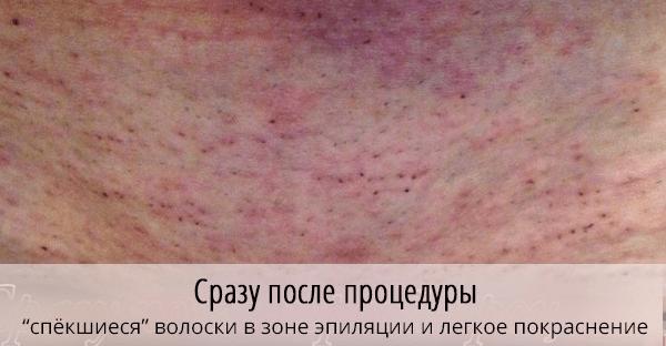 Кожа в области бикини после эпиляции