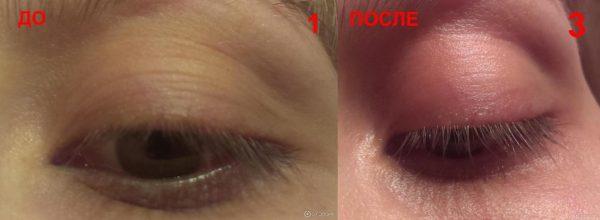 Два фото с изображением кожи вокруг глаз, отображающие результат применения кунжутного масла