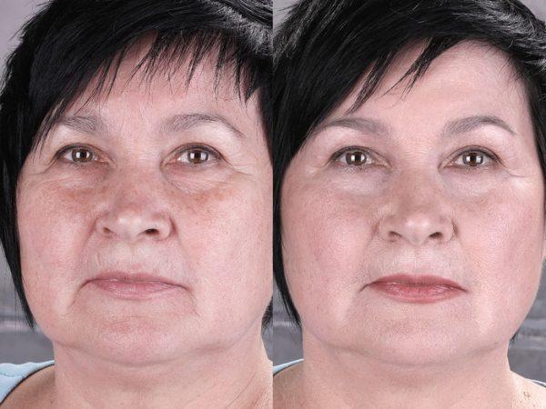 Применение крем-лифтинга: до и после