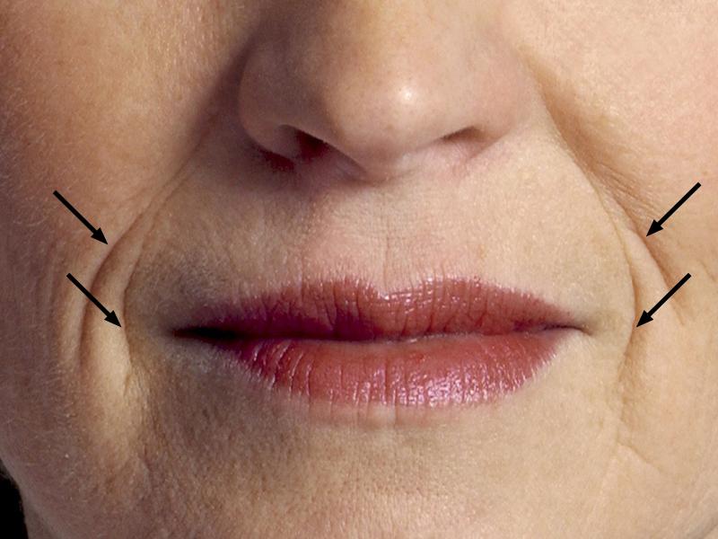 Как убрать морщины вокруг губ (над верхней губой, в уголках)
