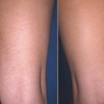 Ноги до и после эпиляции