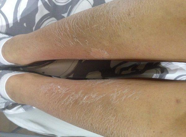 Ноги после обработки бадягой