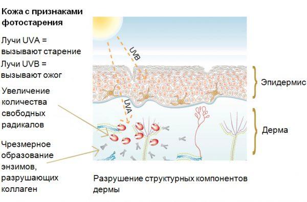 Признаки фотостарения кожи