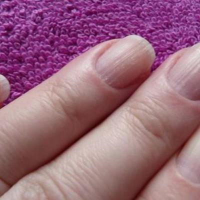 Продольны полоски на ногтях