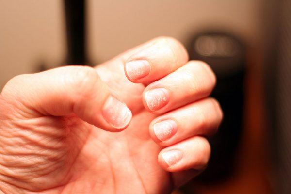 Расслоение ногтей