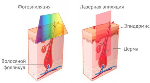 Схема действия лазера и фотовспышки на кожу