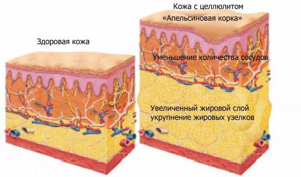 Схема образования целлюлита