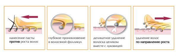 Схема шугаринга