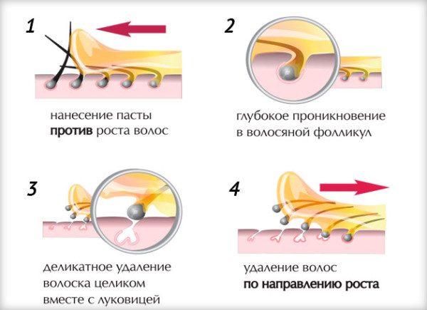 Схема удаления волос сахарной пастой