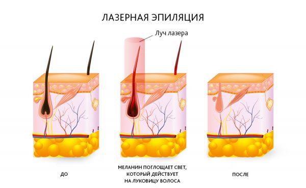 Схема действия лазера на волос