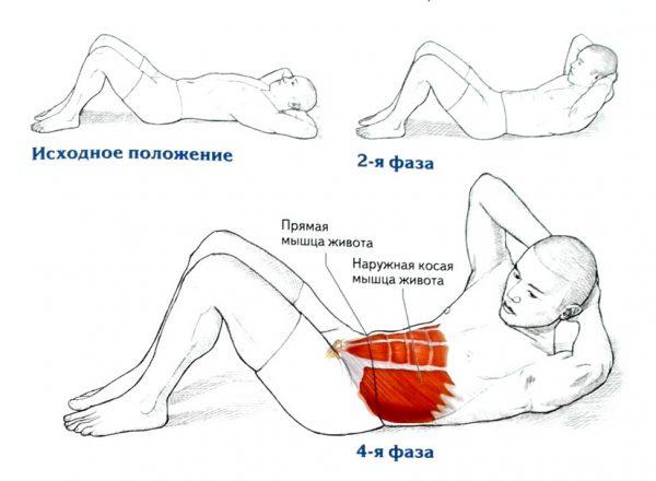 Выполнение упражнения от растяжек на животе
