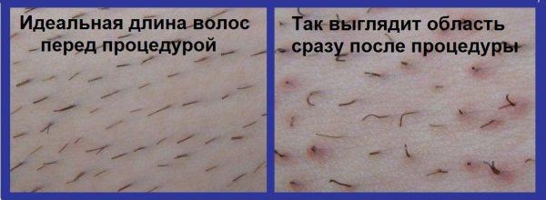 Состояние волос на теле до и после эпиляции