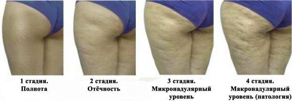 Внешний вид кожи при прогрессирующем целлюлите