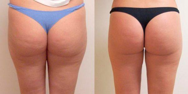 фото до и после курса обёртываний с эфирными маслами