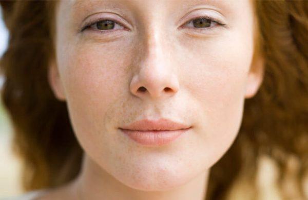 Лицо девушки с сухим типом кожи