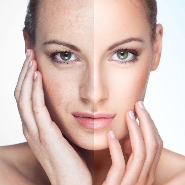Лицо девушки (сравнение молодой и стареющей кожи)