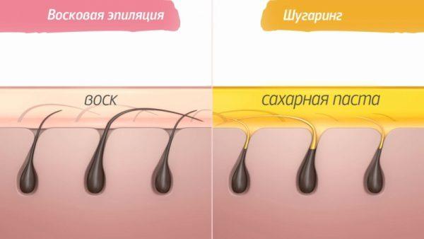 Схема ваксинга и шугаринга