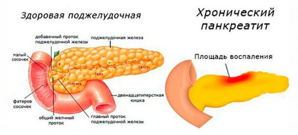 сравнение здоровой поджелудочной железы и органа, поражённого панкреатитом