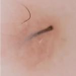 Волос под кожей