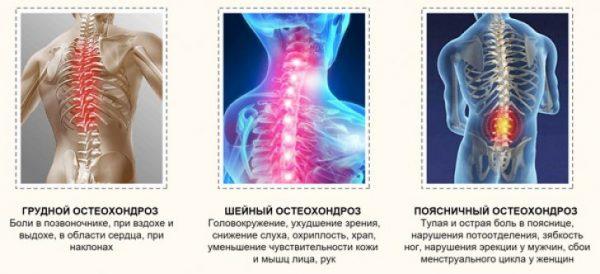 разновидности остеохондроза