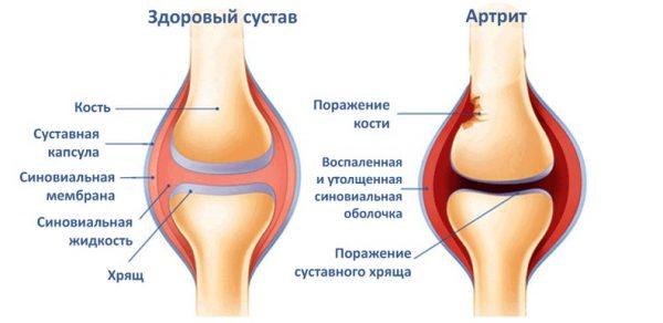 отличия здорового сустава и сустава, поражённого артритом