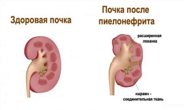 сравнение здоровой почки и почки после пиелонефрита