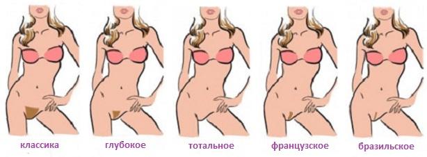 Шугаринг техника бикини дома тамбов магазин женского нижнего белья