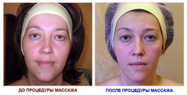 Изменение лица после вакуумного массажа аппаратом Silk Touch