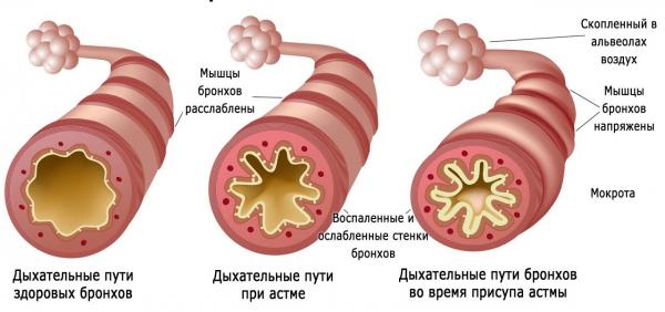Бронхи: здоровые и при астме