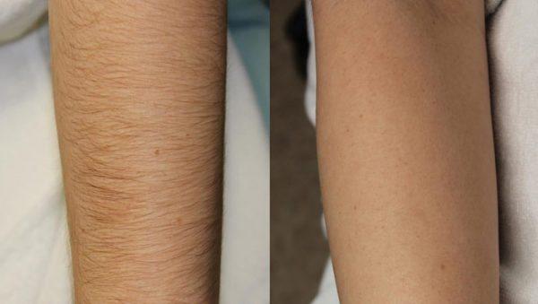 Фото до и после депиляции рук сахарной пастой